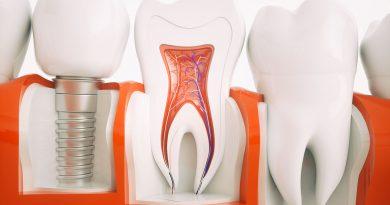 Dentale Dienstleistungen aus dem zahntechnischen Labor.